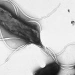 胃ガンの原因?ピロリ菌の検査方法・除菌方法・ヨーグルト効果